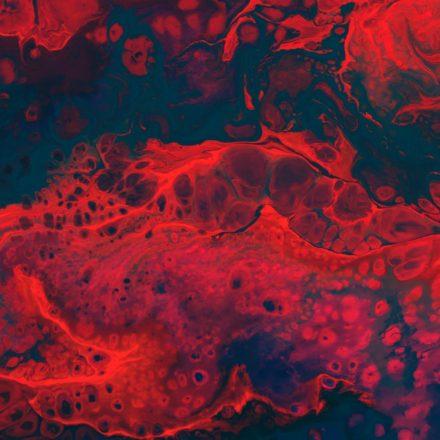 Anemia, czyli niedokrwistość, czyli zrób sobie morfologię